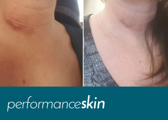 best scar removal cream by performanceskin